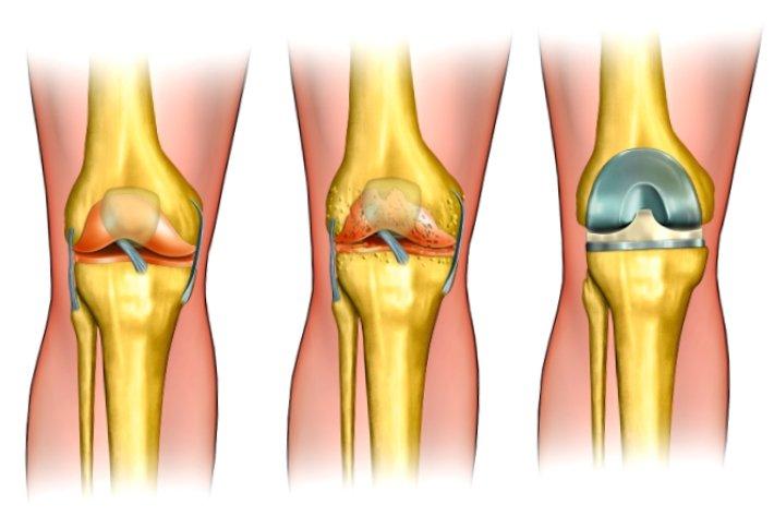 Имплантация биосуставов - избавление от боли в суставах диодинамика суставов