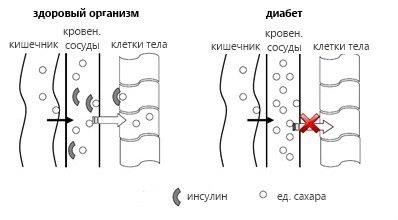 kitayskiy-plastir-ot-diabeta-spb