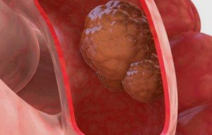 Bowel cancer treatment in Israel