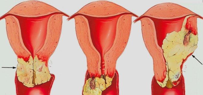 Язва шейки матки лечение
