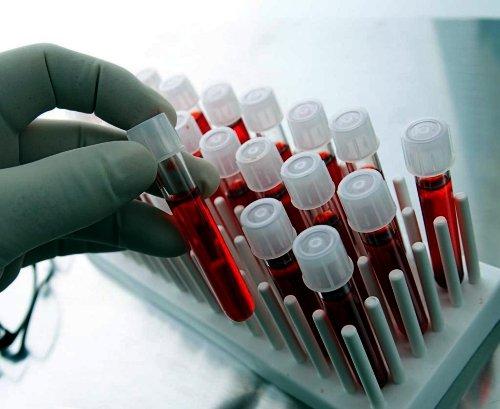 Анализ крови Хадасс